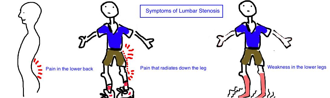 symptoms of lumbar stenosis