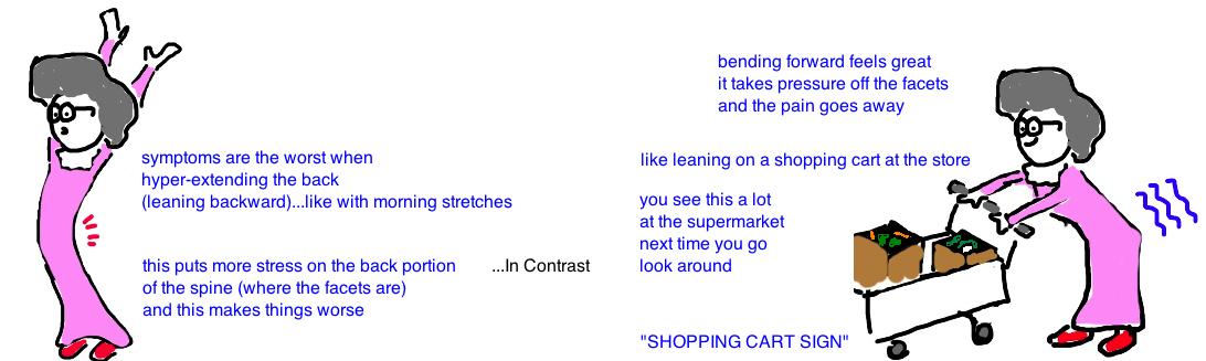 shopping cart sign lumbar stenosis