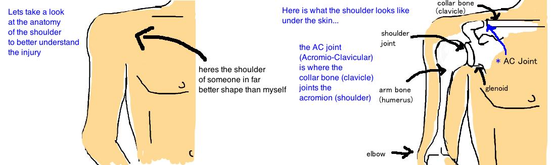 AC joint arthritis anatomy acromioclavicular arthritis