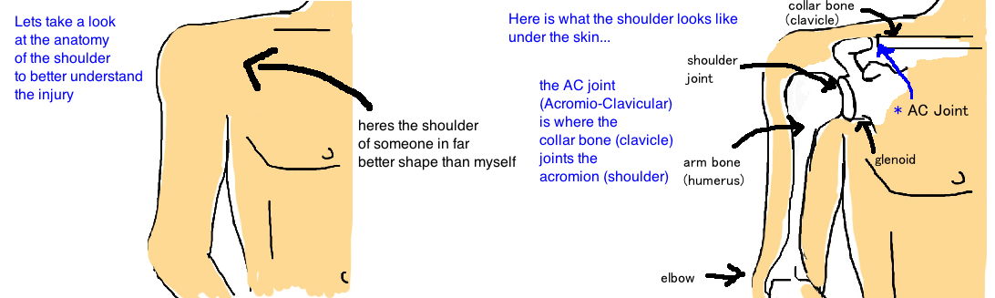 ac joint separation shoulder separation