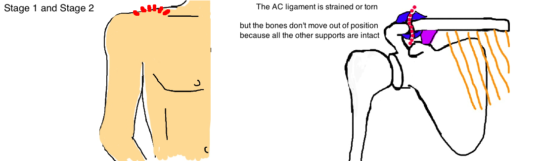 AC ligament tear stage 1 and stage 2