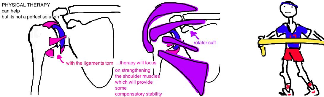 nonop treatment instability