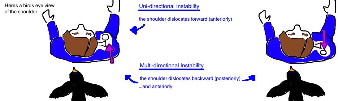 mutlidirectional instability