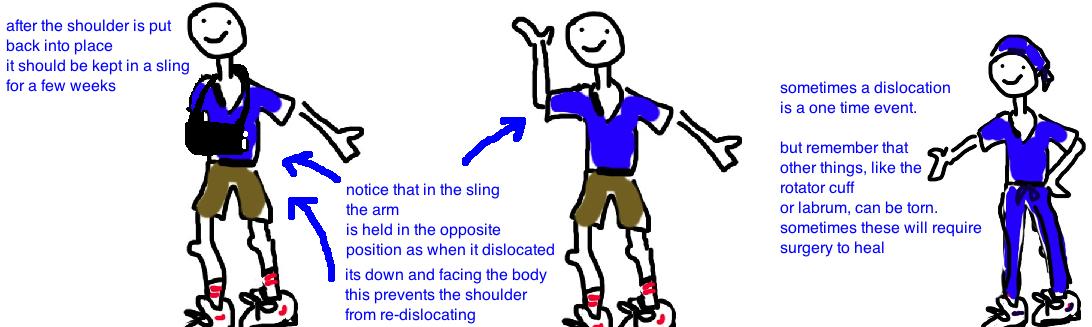 treatment shoulder dislocation