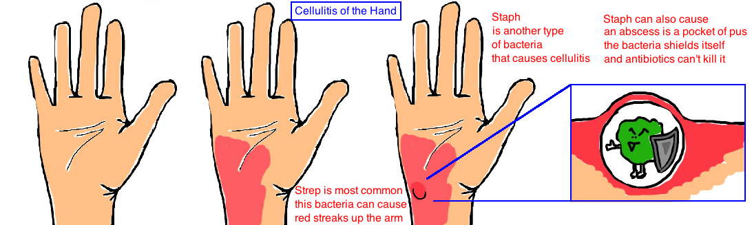 hand infection hand cellulitis staph abscess