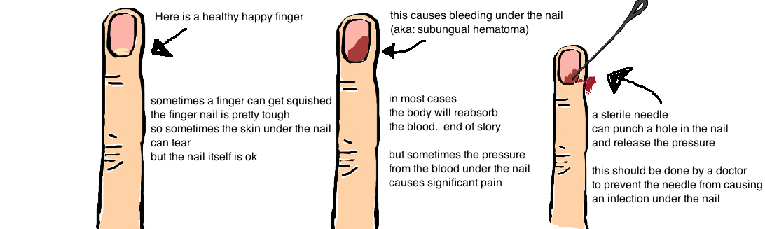 subungual hematoma blood under fingernail