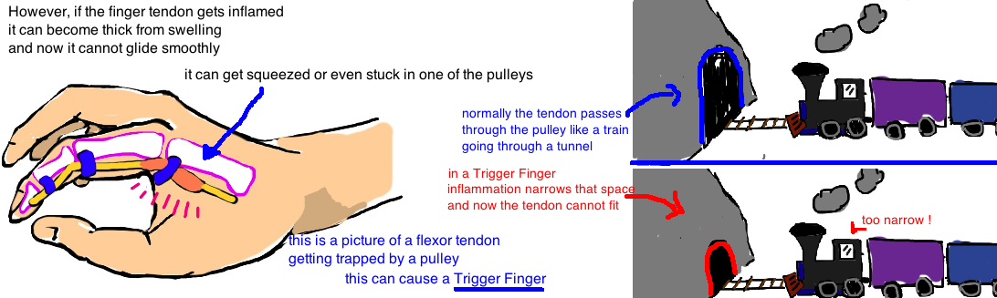 trigger finger is caused by flexor tendon getting caught on the A1 pulley of the hand