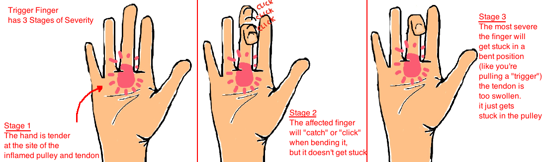 trigger finger symptoms snapping of finger