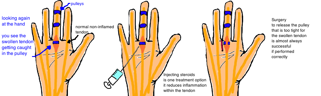 treatment of trigger finger with steroid injection or A1 pulley release