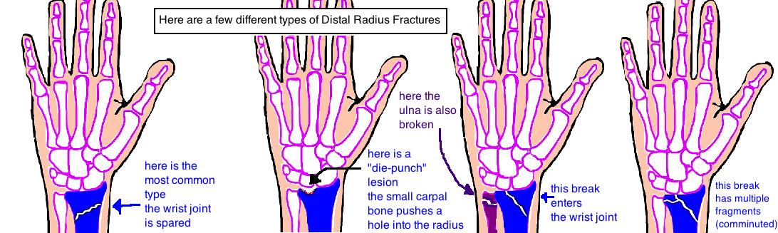 types of distal radius fractures colles fracture barton fracture intraarticular fracture