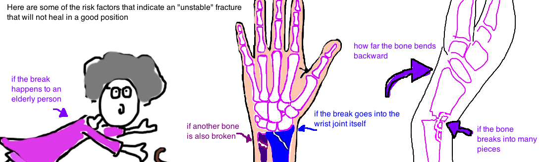risk factors for distal radius fracture instability