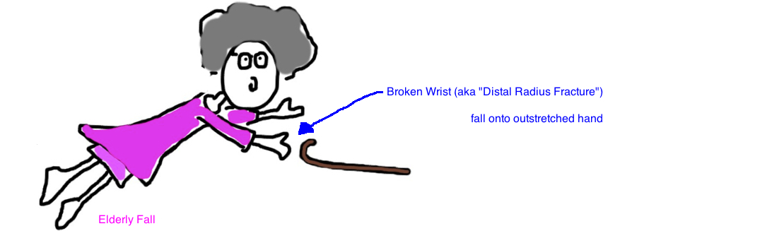 distal radius fracture wrist fracture after fall onto outstretched hand