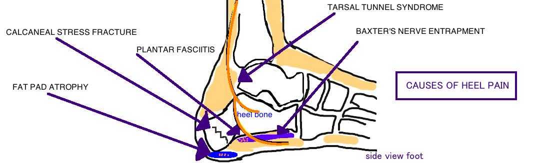 heel pain calcaneus stress fracture baxter's nerve entrapment fat pad atrophy plantar fasciitis
