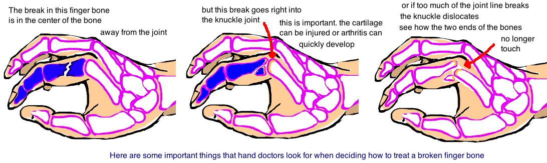 broken finger, extraarticular phalanx fracture, PIP MCP fracture-dislocation