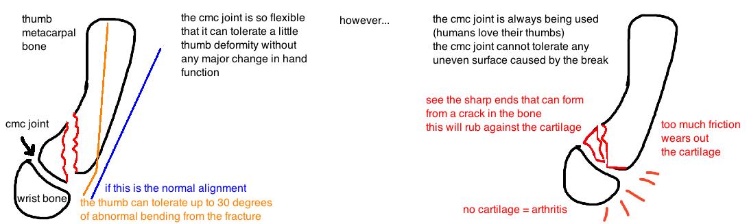 post traumatic cmc arthritis
