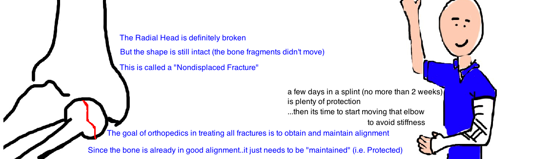 treatment of nondisplaced radial head fracture