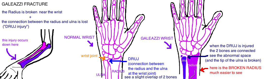galeazzi fracture distal third radius fracture with druj injury