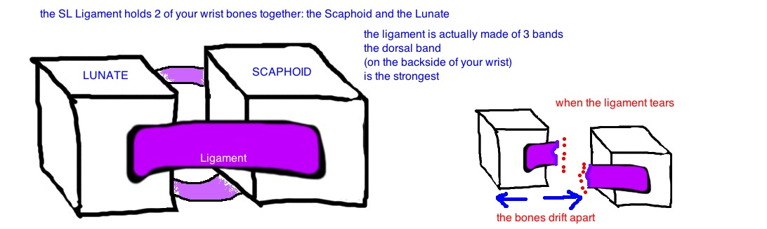 if the SL ligament tears the gap widens between the scaphoid and lunate