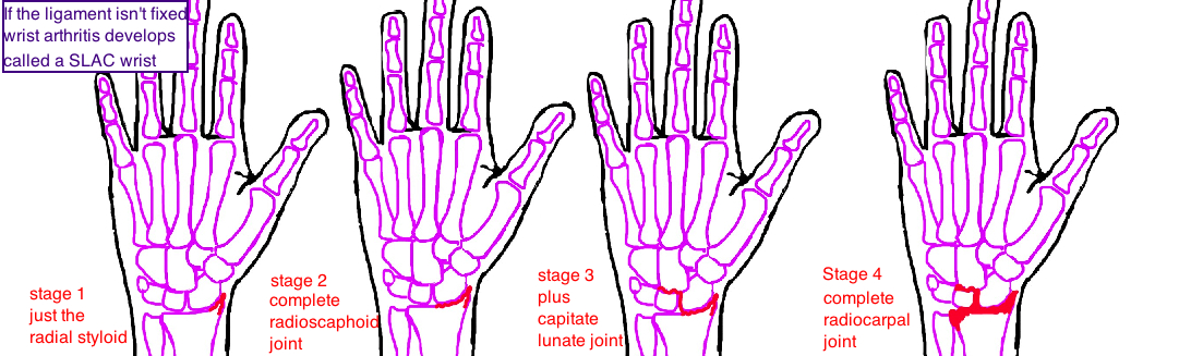 SLAC wrist scapholunate advanced collapse wrist arthritis