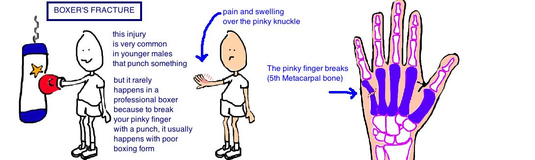 Broken Hand (Metacarpal Fracture) — Bone Talks