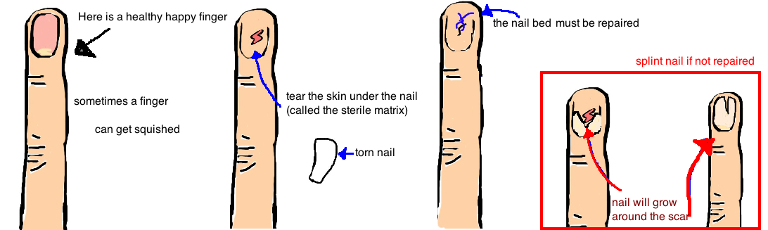 fingernail injury nailbed laceration torn finger nail