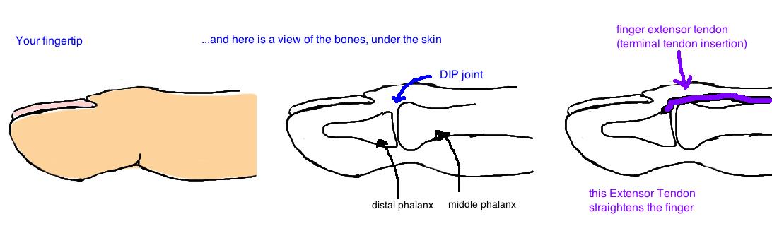 anatomy of the finger extensor tendon mallet finger anatomy