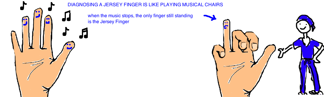 jersey finger remains sticking up when you make a fist