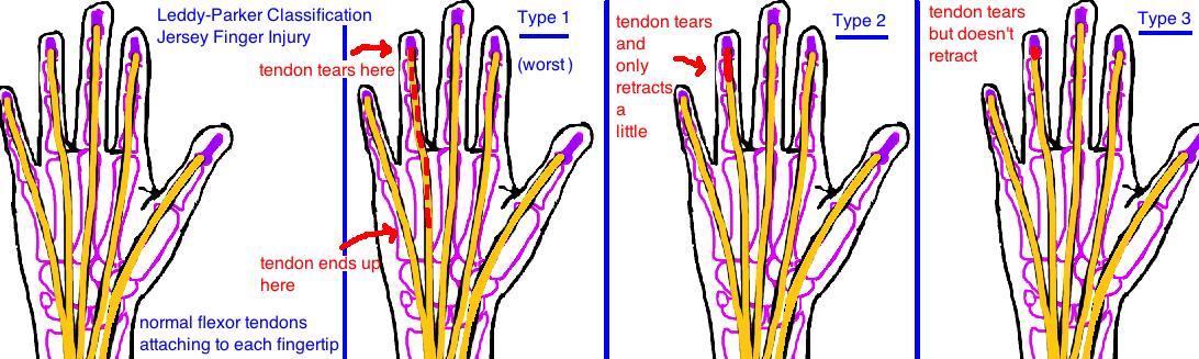 Leddy Parker Classification of Jersey Finger Injury