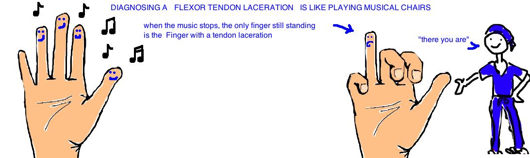 flexor tendon tenodesis