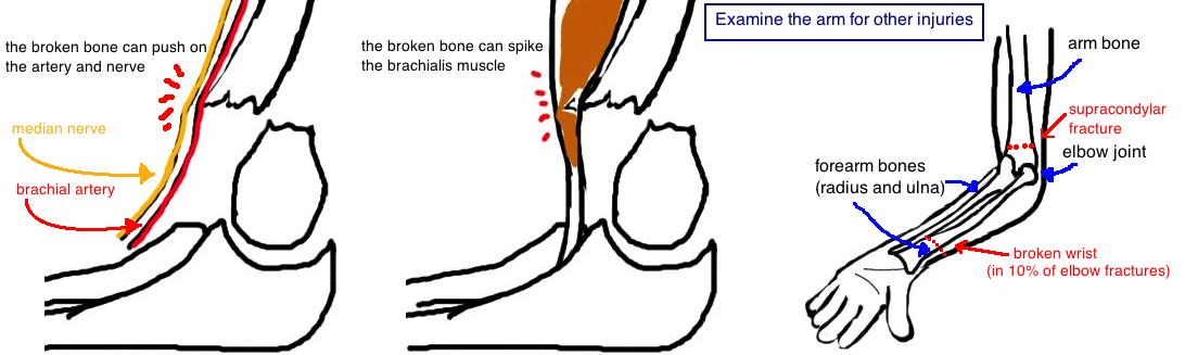 median nerve injury brachial artery injury
