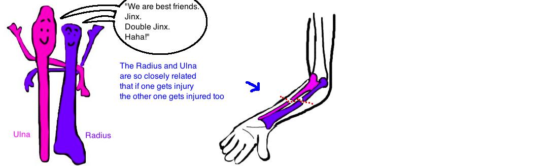 broken forearm in children bbfa fracture