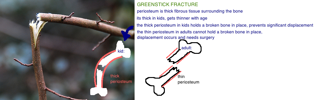 greenstick fracture thick periosteum