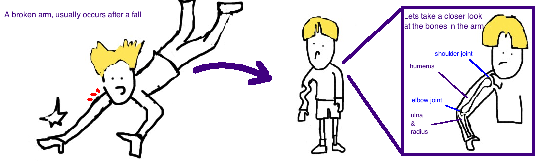 pediatric proximal humerus fracture kids broken arm