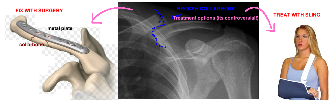 does surgery for broken collarbone have good results?