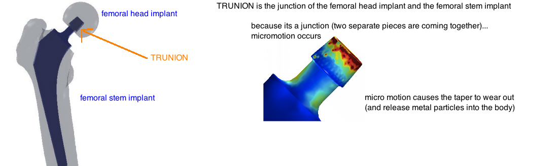 Trunionosis in THA fretting corrosion at the head neck junction