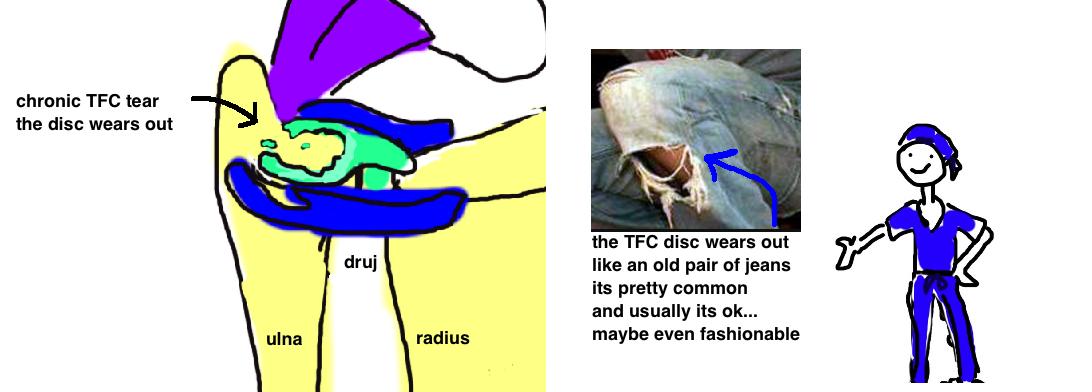 chronic tear of the TFC disc trangular fibrocartilage disc degeneration