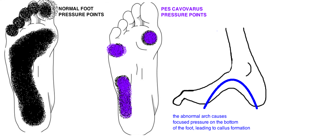 pes cavus pes cavovarus pressure callus formation first and fifth metatarsal heads and lateral foot
