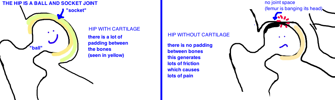 what is hip arthritis?  treatment for hip arthritis is total hip replacement or a hip resurfacing procedure
