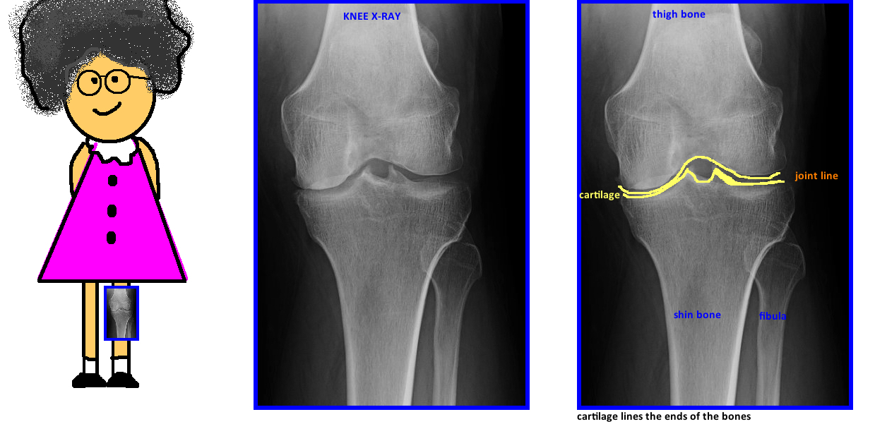 what does a knee xray look like