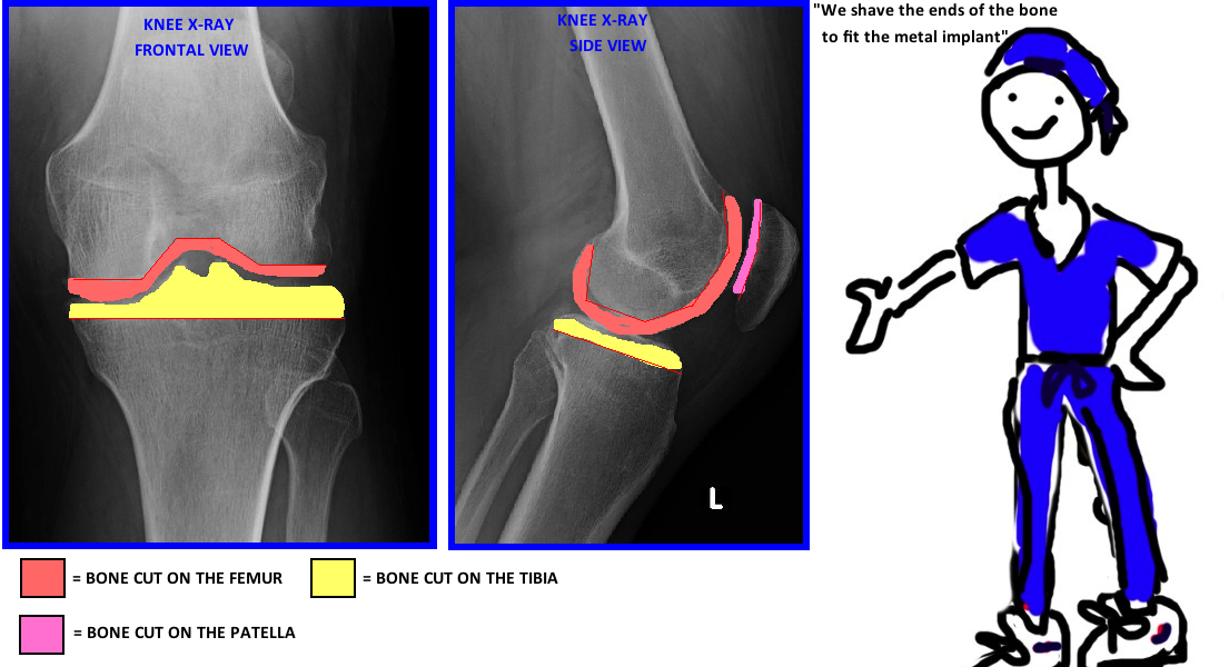 where do they cut your bone for a knee replacement? what does knee replacement look like