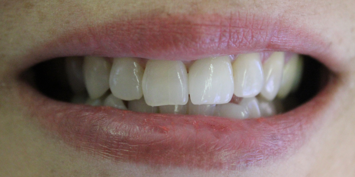 Dental Implantafter Honolulu Dentist Dr Wade Takenisihi