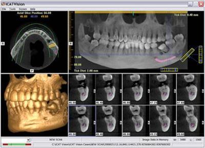 Honolulu Dentist Dr Wade Takenishi dental implants. Cone Beam scan