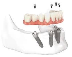 Honolulu best dentist All on 4 Dental Implants
