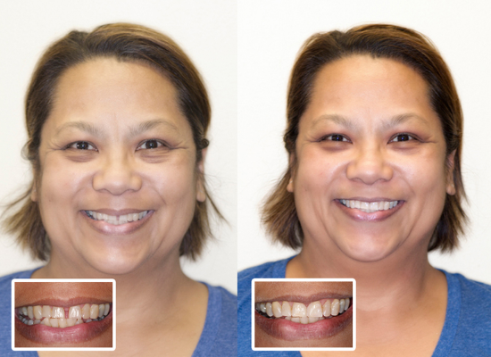 Dental Bonding Before and After Honolulu Best Dentist Dr Wade Takenishi