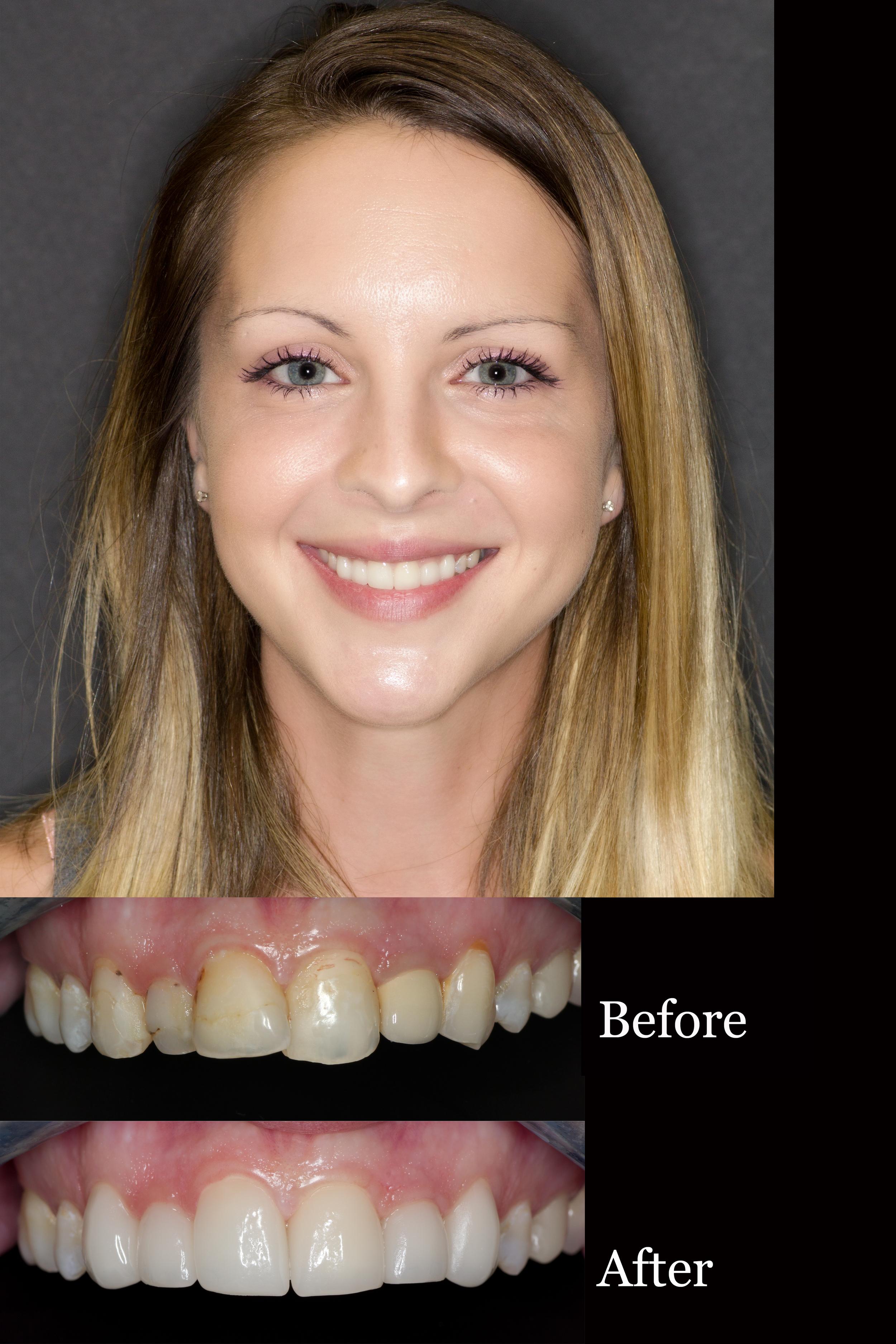 Smile Makeover Oneday Honolulu Best Dentist