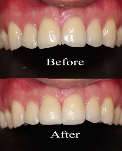 chipped teeth.jpg