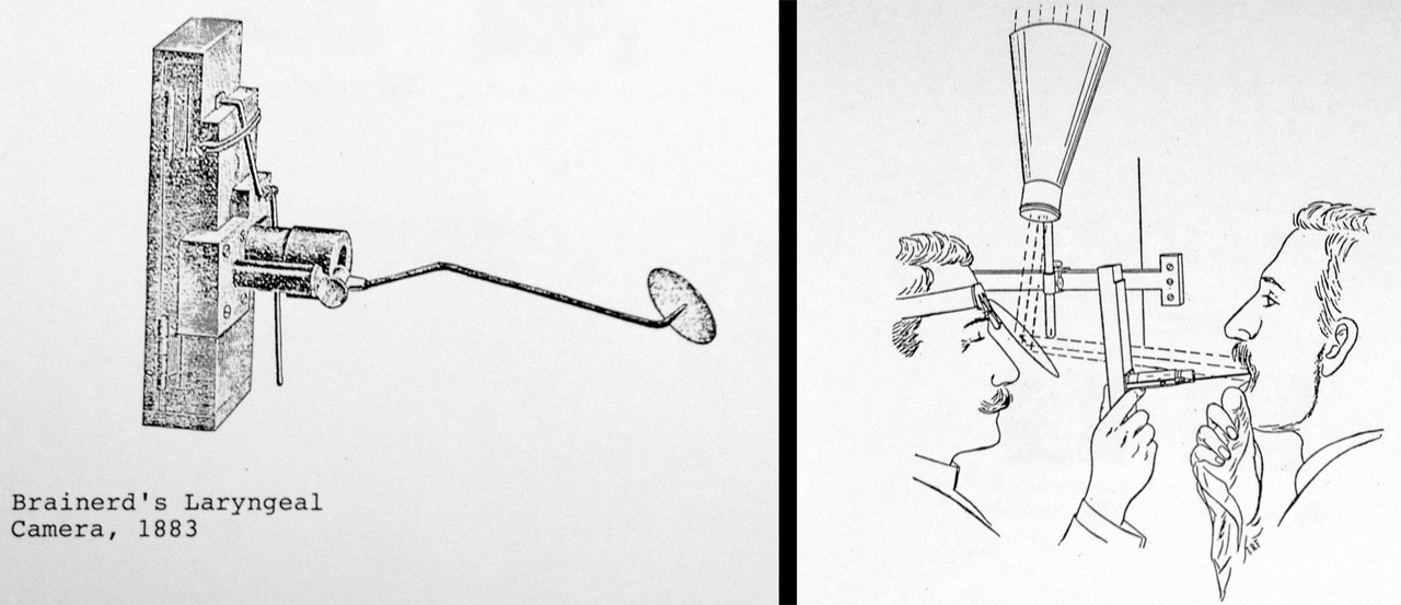 These drawings are the only known remnants of what Brainerd's laryngeal camera looked like.