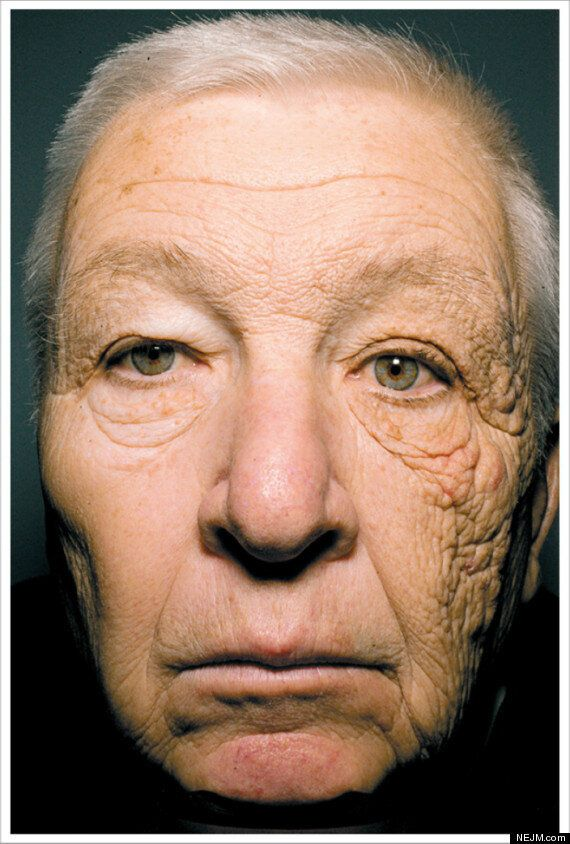 Toto sa volá    unilaterálna dermatohelióza    a pánovi McElligottovi odporučili dermatológovia tri veci- lokálne retinoidy, SPF a rakovinový monitoring, foto:    The New England Journal of Medicine