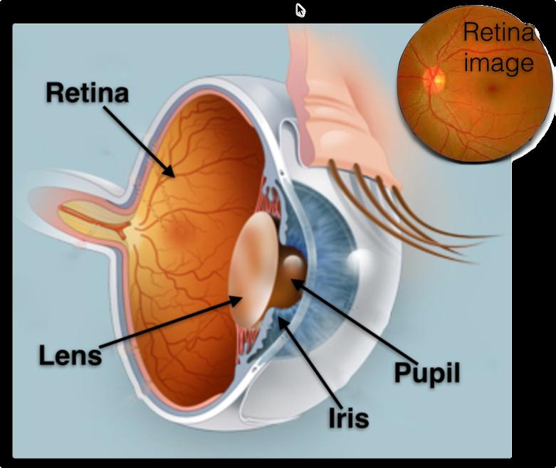 retinal.png
