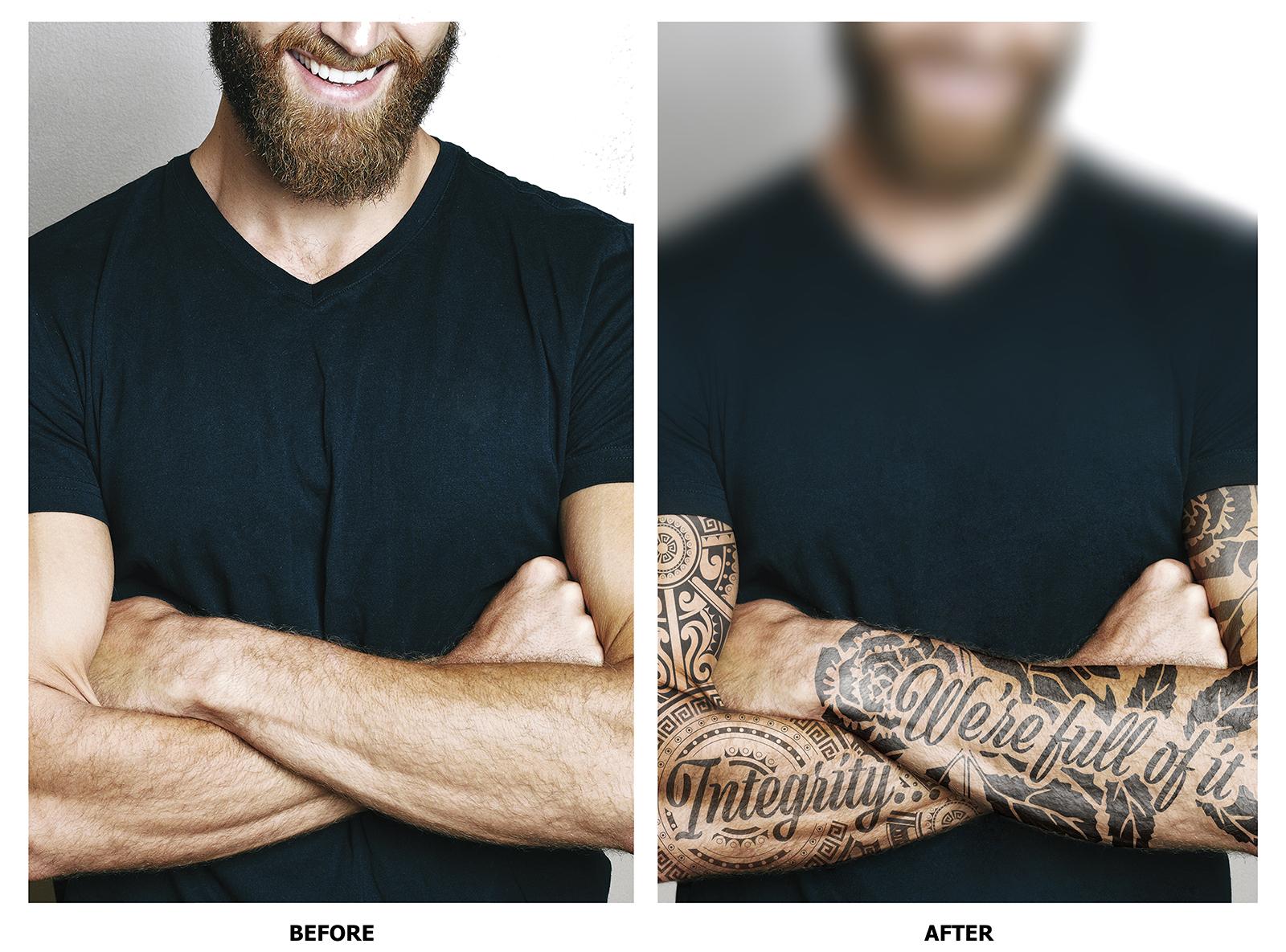 Acorda Therapeutics: Tattoos